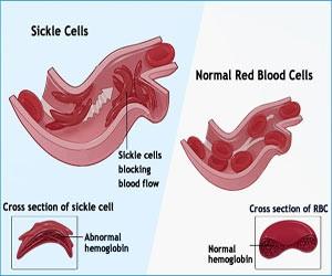Image by: https://www.google.ca/search?q=sickle+cell+disease&biw=1093&bih=530&source=lnms&tbm=isch&sa=X&sqi=2&ved=0ahUKEwjam6PB-NjQAhUC8GMKHYp9DgoQ_AUIBigB#imgrc=XE_bnJlLPbUiLM%3A