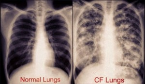 cf-lungs