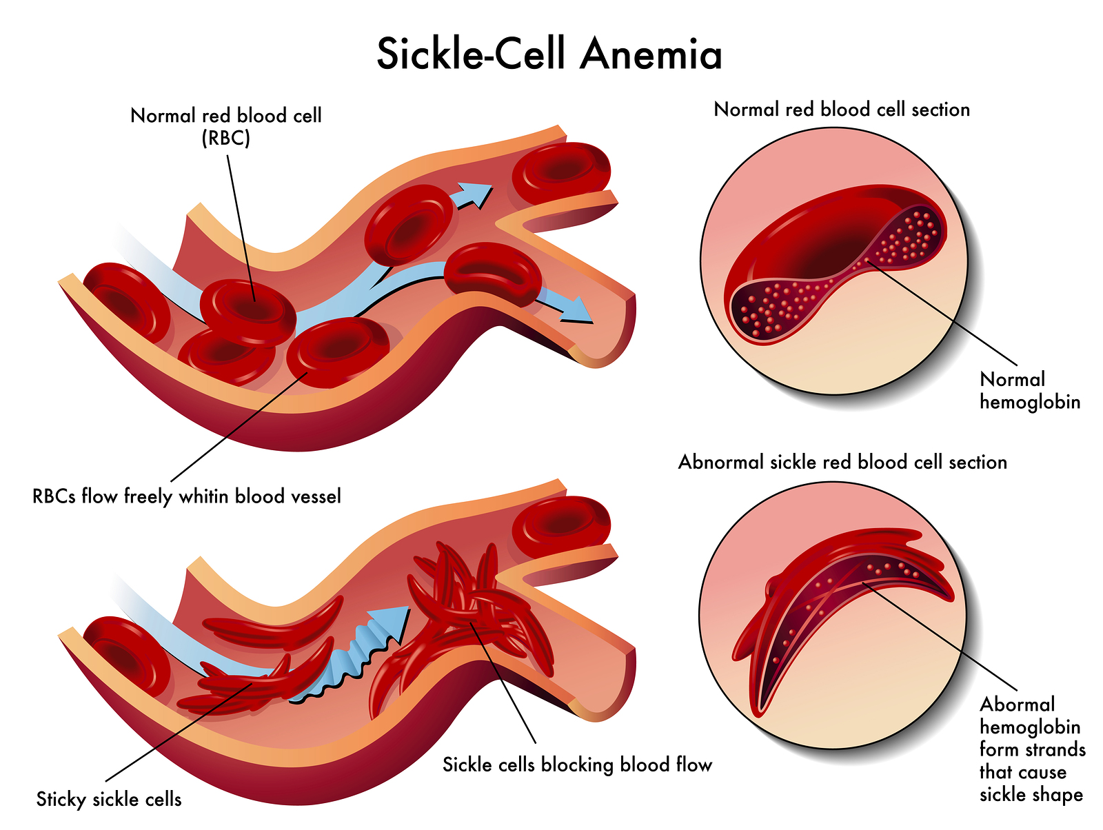 sickle cell anemia addi s blog medical illustration of the effects of sickle cell anemia
