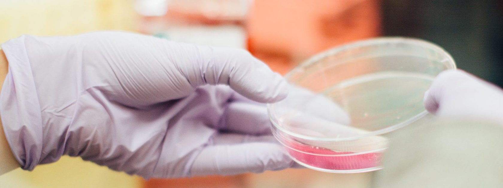 hands with purple gloved holding a petri dish